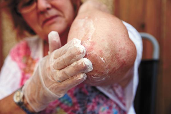 Understanding eczema key to managing, treating it