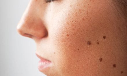 Older adults typically develop common benign skin growths