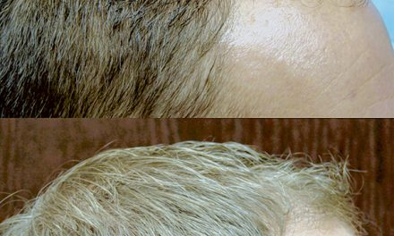 The science of hair  restoration, preservation