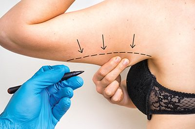 Varied treatments possible to diminish sagging arms