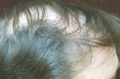 Losing your hair? Try easier, natural remedies first