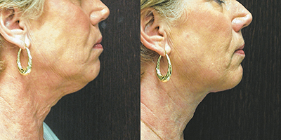What can be done about  saggy, drooping neck skin?