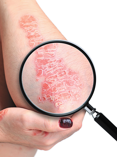 Eczema comes in many itchy, irritating, annoying forms
