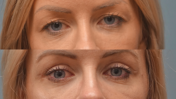 Eyelid surgery an option for those tired of looking tired