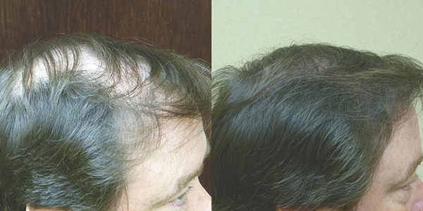 Questions about hair loss have many successful answers