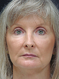 History of the evolution of facial  fillers as cosmetic enhancement