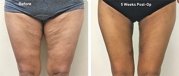 What kind of treatment can help unattractive legs?
